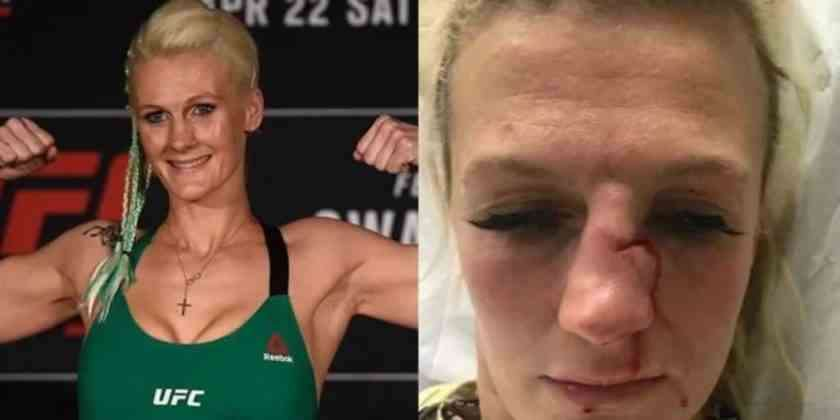 , Peleadora de MMA recibe brutal golpiza de su pareja